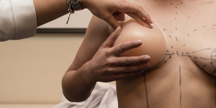 preparatory stage for plastic surgery to increase the female breast